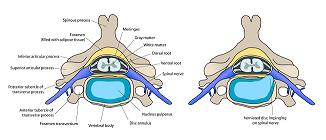 Skiveprolaps - trykk på nerve forårsaket av prolaps