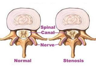 Spinal stenose gir minsket rom i spinalkanalen